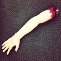severed arm